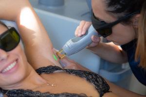 Femme qui se fait epiler les aisselles au laser