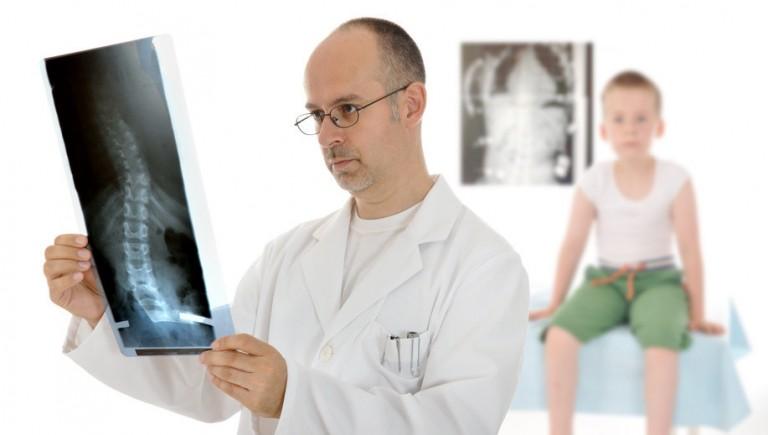 Le rôle de l'ostéopathie dans le dépistage de la scoliose de l'enfant