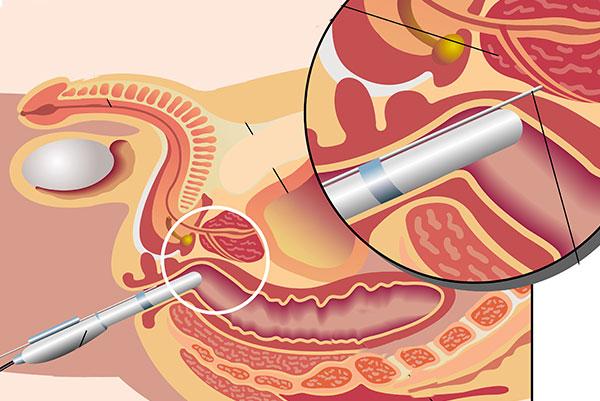 La biopsie de la prostate